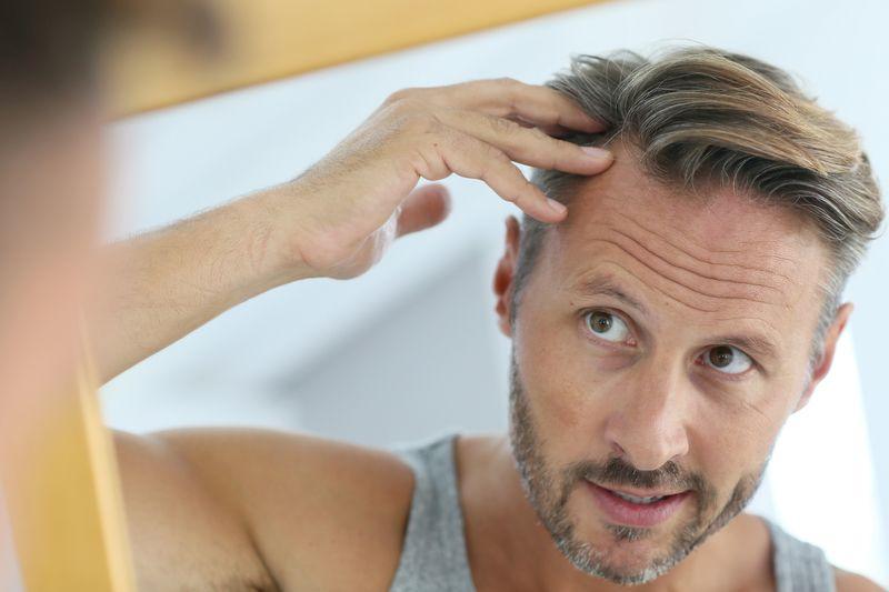 Die Entscheidung zur Haartransplantation